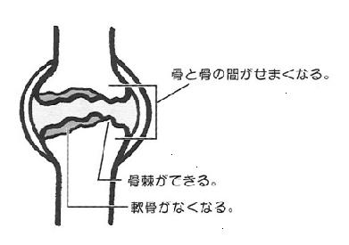 中期~後期の変形性ひざ関節症